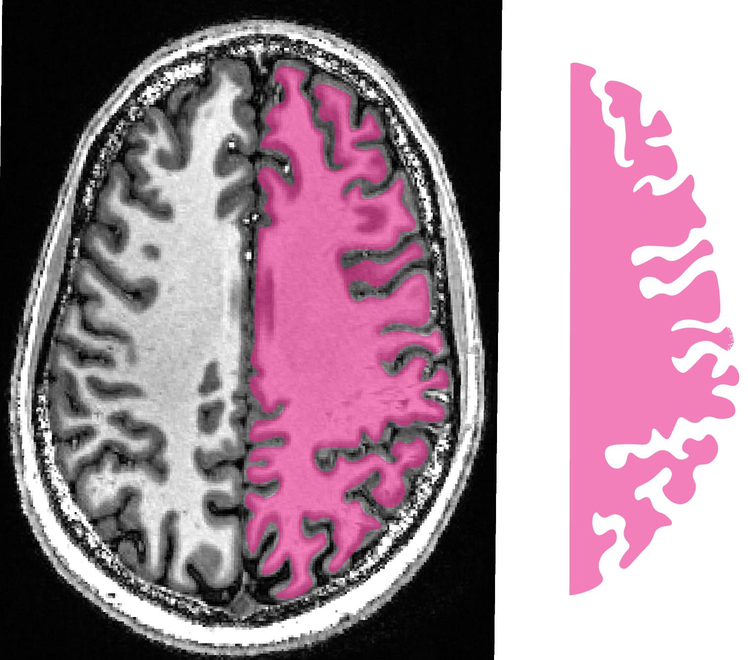 Scale_less_brain-01