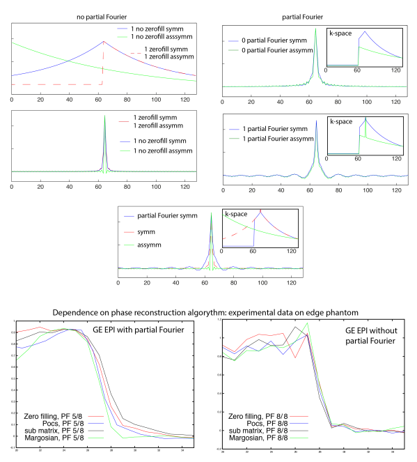 figure_Partial_fourier_effect-01.png