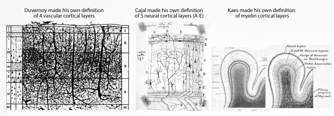 cortical_layers-01.png